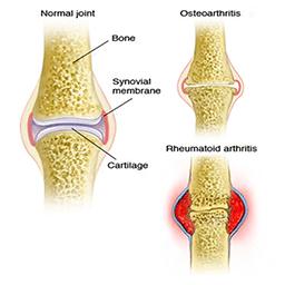 تاثیر گانودرما روی آرتوزوز