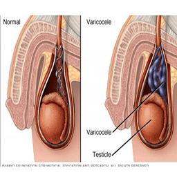 تاثیر گانودرما در پیشگیری از واریکوسل
