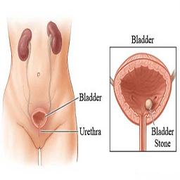 تاثیر قارچ ها روی سرطان مثانه